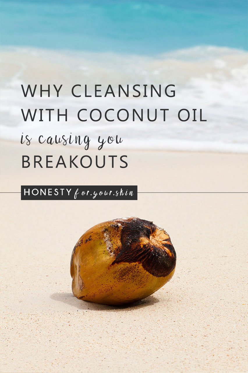 Can coconut oil cause breakouts? Does coconut oil cause spots? Can coconut oil cure acne? If you've looked into the pros & cons of using coconut oil on your face or body you've probabaly found a whole load of information and reviews that've been a bit like filtering through the reviews of a 3.5 star rated hotel on Tripadvisor. Whether coconut oil can cause you breakouts all depends on which type you're using! Yup, there's actually 2 main types and understanding this one key difference will help you to avoid any future coconut induced breakouts... http://wp.me/p6LuQS-13D