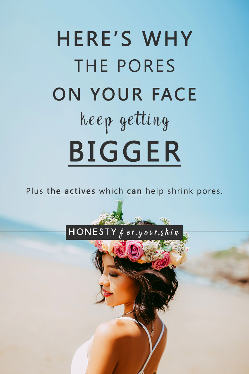 Why are the pores on my face getting bigger? Why are my pores so big on my cheeks? What is the best way to make your pores smaller? You've got questions dear friend and I've got answers.