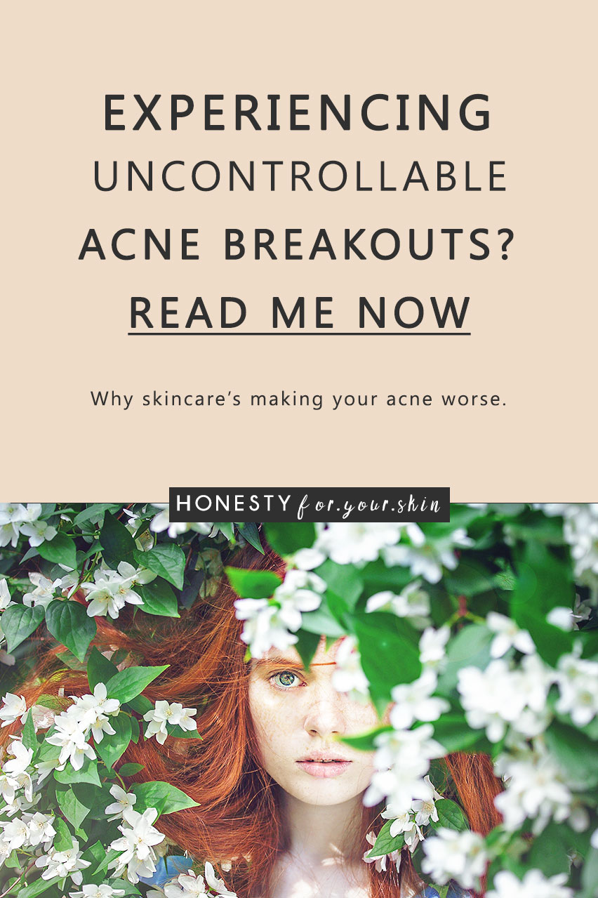 Shocking fact: breakout preventing skincare could be causing you... breakouts! And the more you're using this 1 specific thing - the worse your breakouts could be getting. In fact - using this 1 thing could be a sole cause of your breakouts. Yikes.