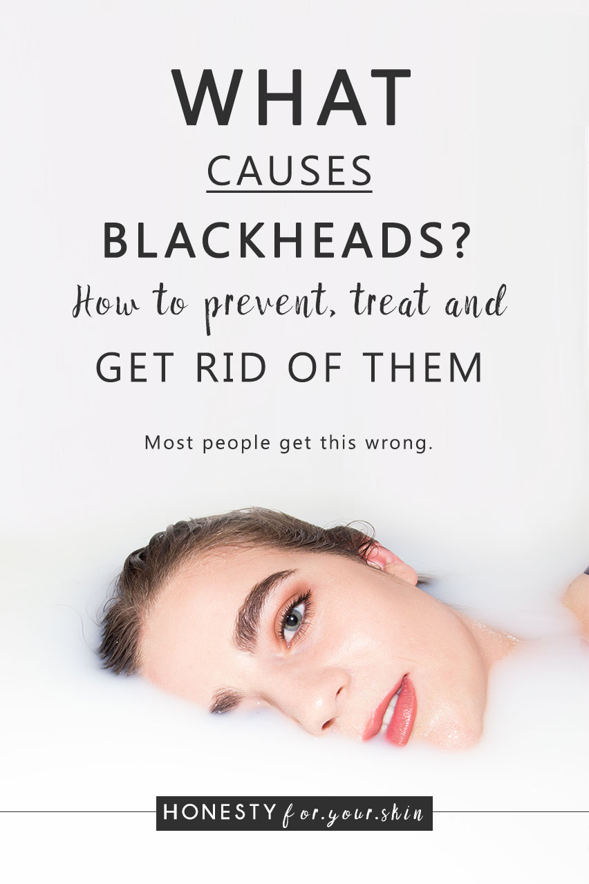 Are you ready for this? What causes blackheads? How to prevent blackheads and is it okay to squeeze blackheads? Come learn all my skin savvy in the making...