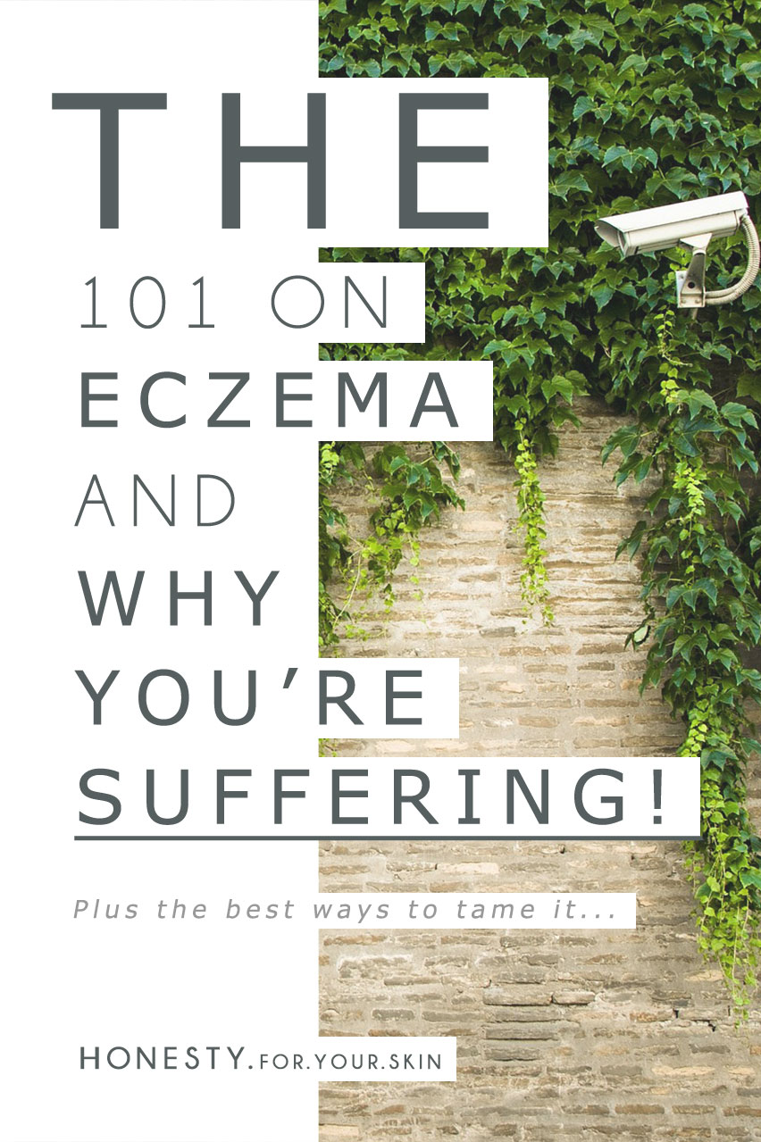Eczema can be a pesky on-going skin condition that might make you want to hide under a rock and channel the scratching abilities of a cat. You are still absolutely looking beautiful my friend, so let me take your hand 'n pull you out from under that rock while we get down to the business of what's actually happening when your skin is suffering from eczema...? Why is it happening, why is it happening to you? And just what the heck can you do to avoid eczema flair-ups? #UnderstandingIsEmpowerment http://wp.me/p6LuQS-Pg