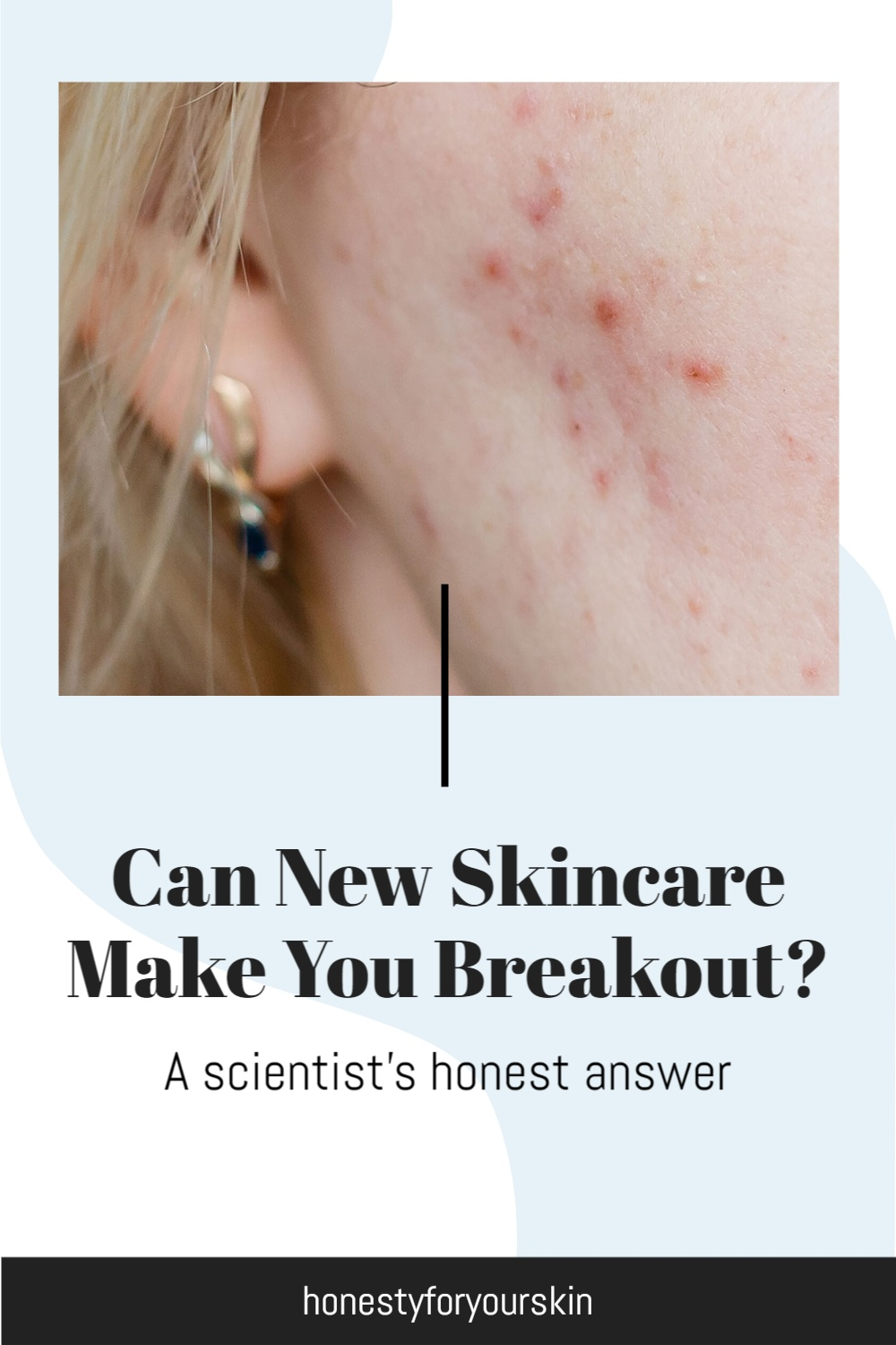 Yikes. You just started using new skincare and now you've got spots. Breakouts. Your acne's getting worse. What the heck? This could be purging skin. Like The Ordinary retinol purge. Or is could be something more sinister. Click to find out.