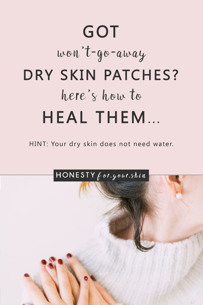 Dry skin patches are oh so irritating... especially when they happen on your face. They look flaky, red and can be sensitive. They can suck your confidence. Clump your foundation. Be painful, itchy and ageing. Dry skin patches are a sign your skin health is low. Do nothing and your dry skin patches will get worse. Choose to take action and your skin health battery can be happily topped back to full. Want to know how? Come learn all my friend...