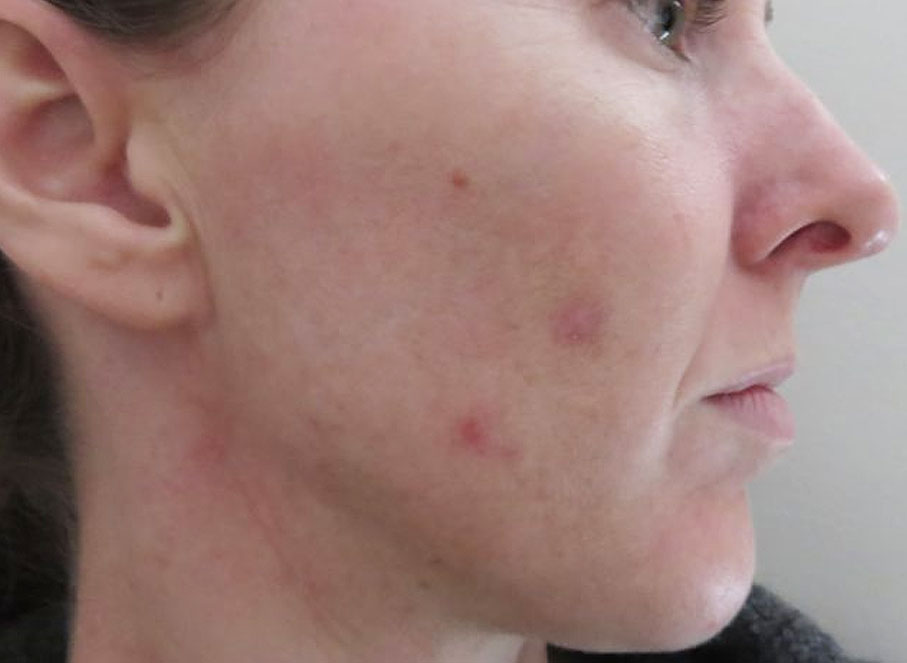 This is an example of retinol purging. 4 weeks after starting The Ordinary retinol.