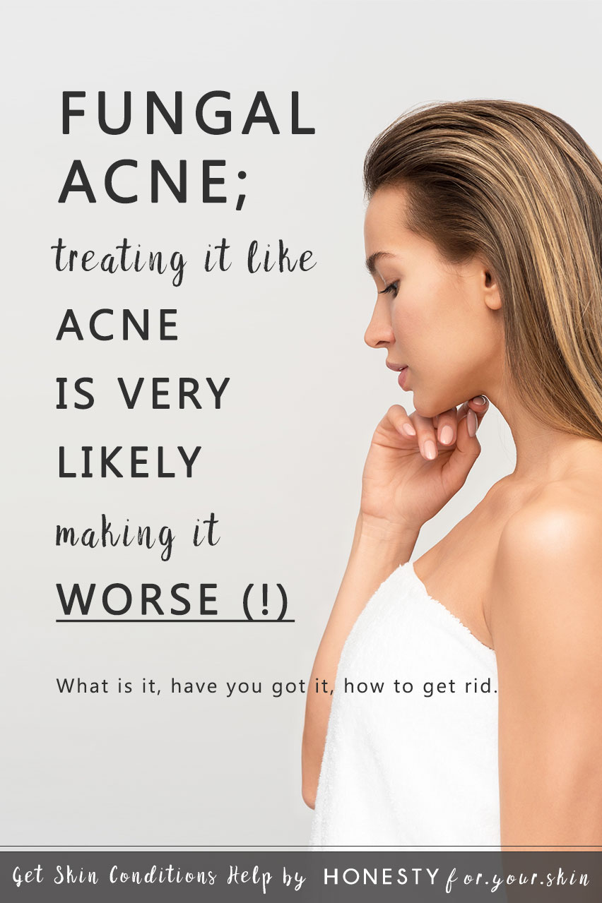 Fungal Acne What Is It Have You Got It How To Get Rid