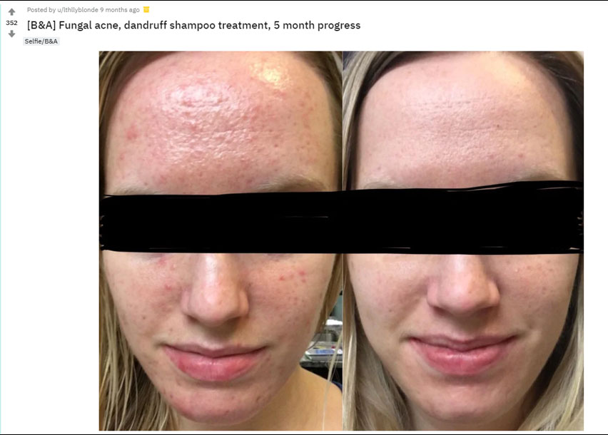 Fungal Acne Reddit Honesty For Your Skin