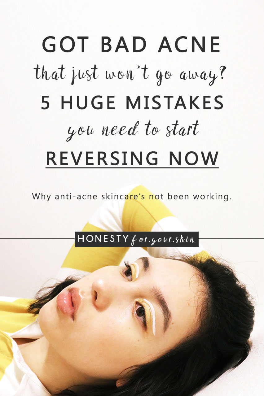 What helps bad acne? Why am I breaking out so bad? What's causing my acne? Quick get me the strongest treatment for acne now. I need it. My skins in a gigantic pickle – give me everything you've got. Sound familiar? Bad acne can be caused by doing things you think will help acne. Here are 5 anti-acne mistakes you're extremely likely to be making now.