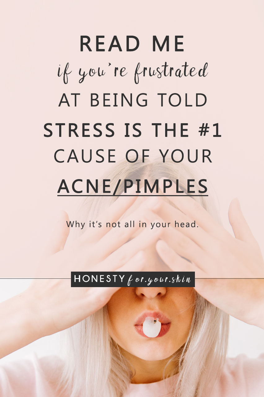 Today my friend we're delving head first into stress and acne. We're chatting about 1) Can stress make your face break out? 2) Does stress actually cause acne? 3) If it does - (and I'm not saying it does - keep reading!) how do you treat stress acne?