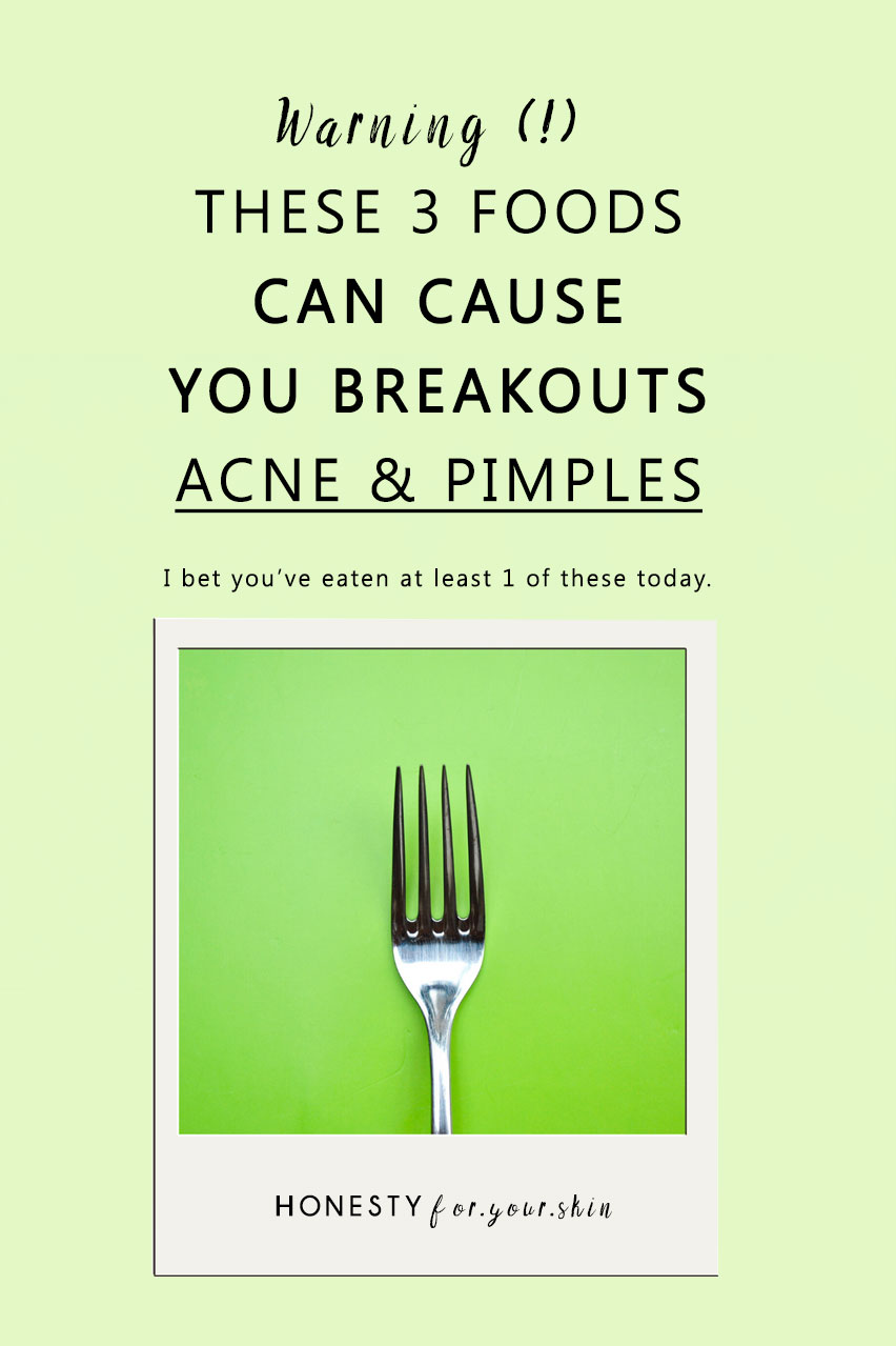 WebMDs list of best and worst foods for acne will not work unless you know this. Click to read.