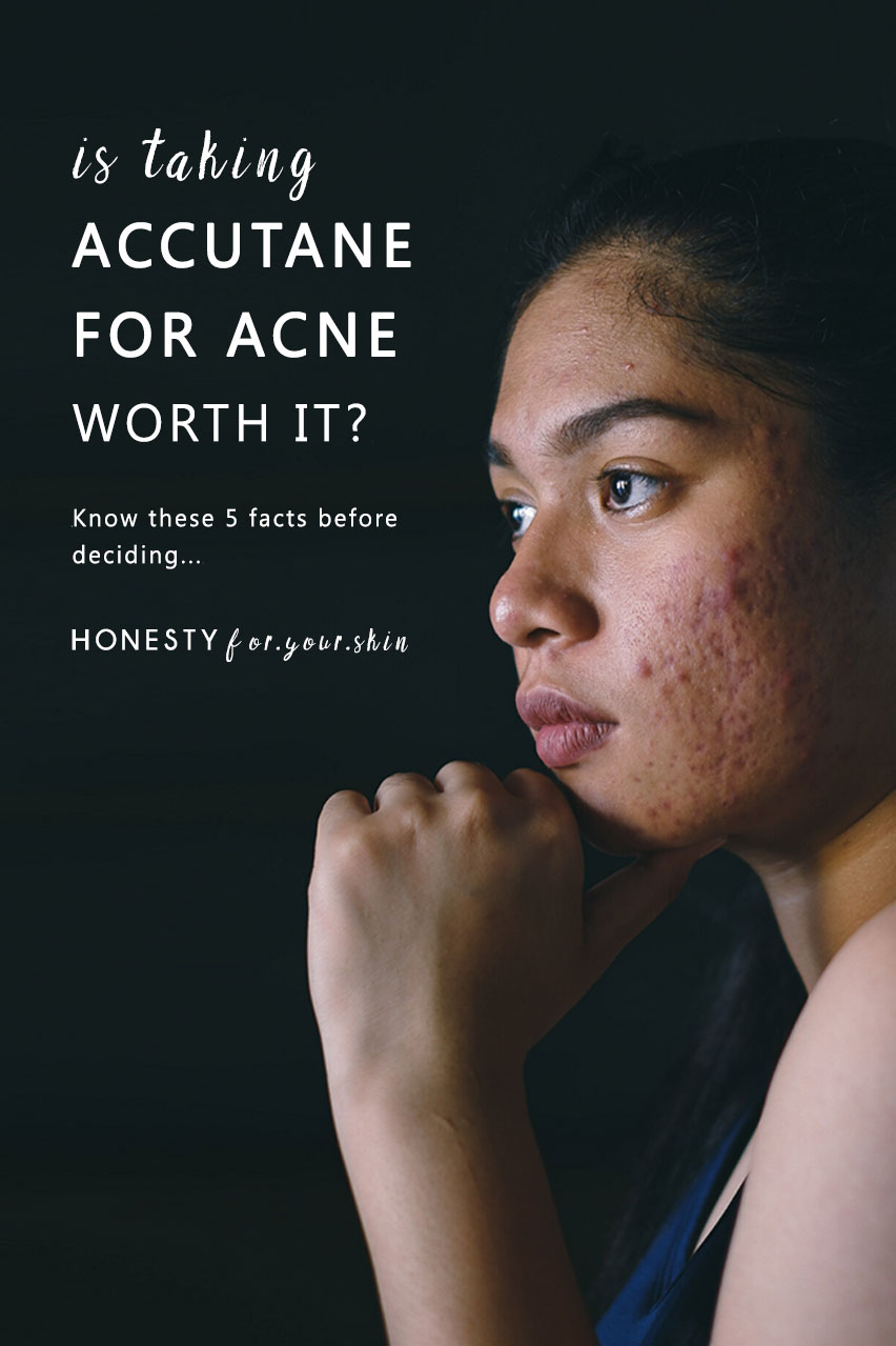 Is Accutane worth it? Is it a permanent cure for acne? You must know these 5 facts about isotretinoin before you consider taking Accutane. Read these Accutane reviews and decide if Accutane is worth it for you.