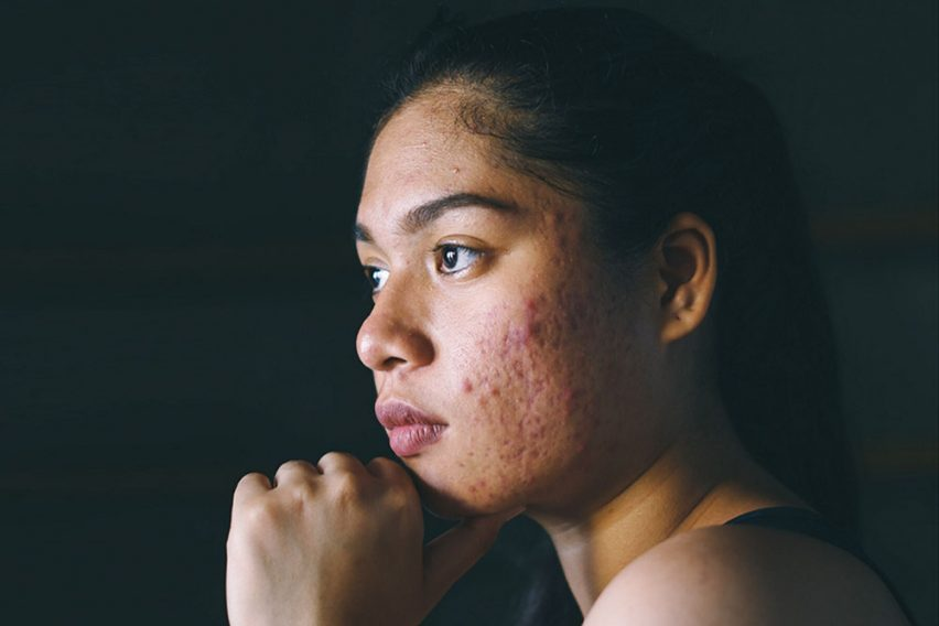 Is Accutane worth it? You must know these 5 facts about isotretinoin before you consider taking Accutane. Read these Accutane reviews and decide if Accutane is worth it for you.