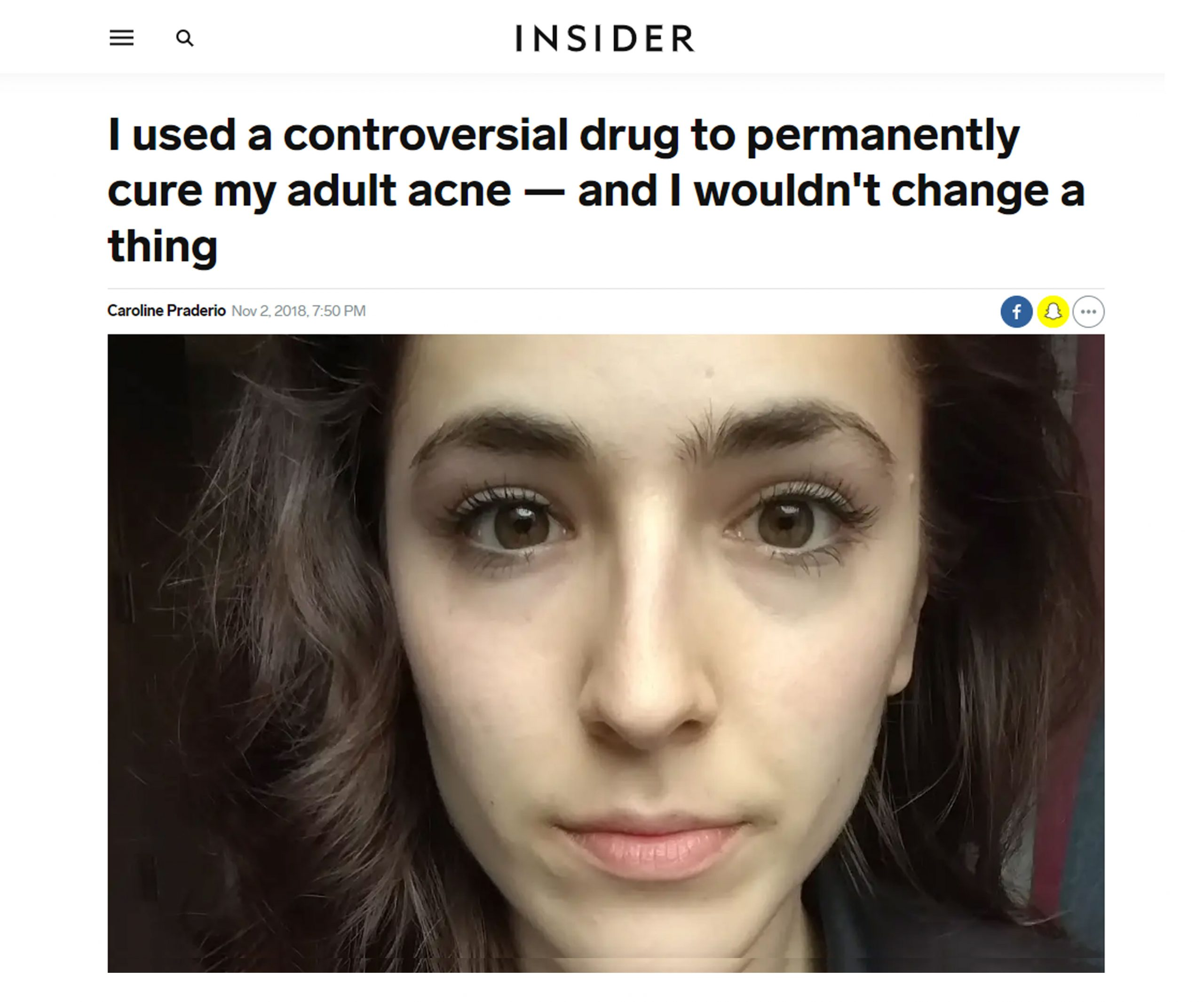 Is Accutane worth it? Personal before and after review of Accutane from Caroline Praderio.