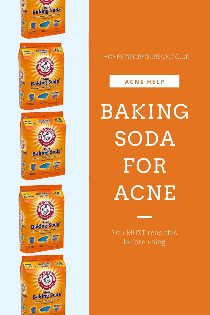 Stop and read this before you use baking soda for acne. I mean it. Do not use a baking soda acne scrub or a baking soda mask for acne without reading this first. There's vital skin science at play. Click to find out more.