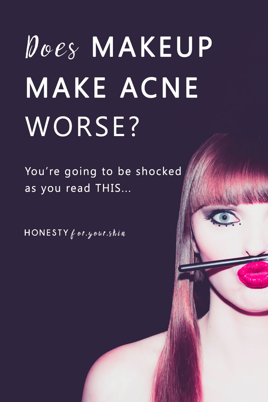 Find out if makeup could be causing your acne plus why sometimes makeup can help heal acne. Does makeup cause acne is not straight forward.