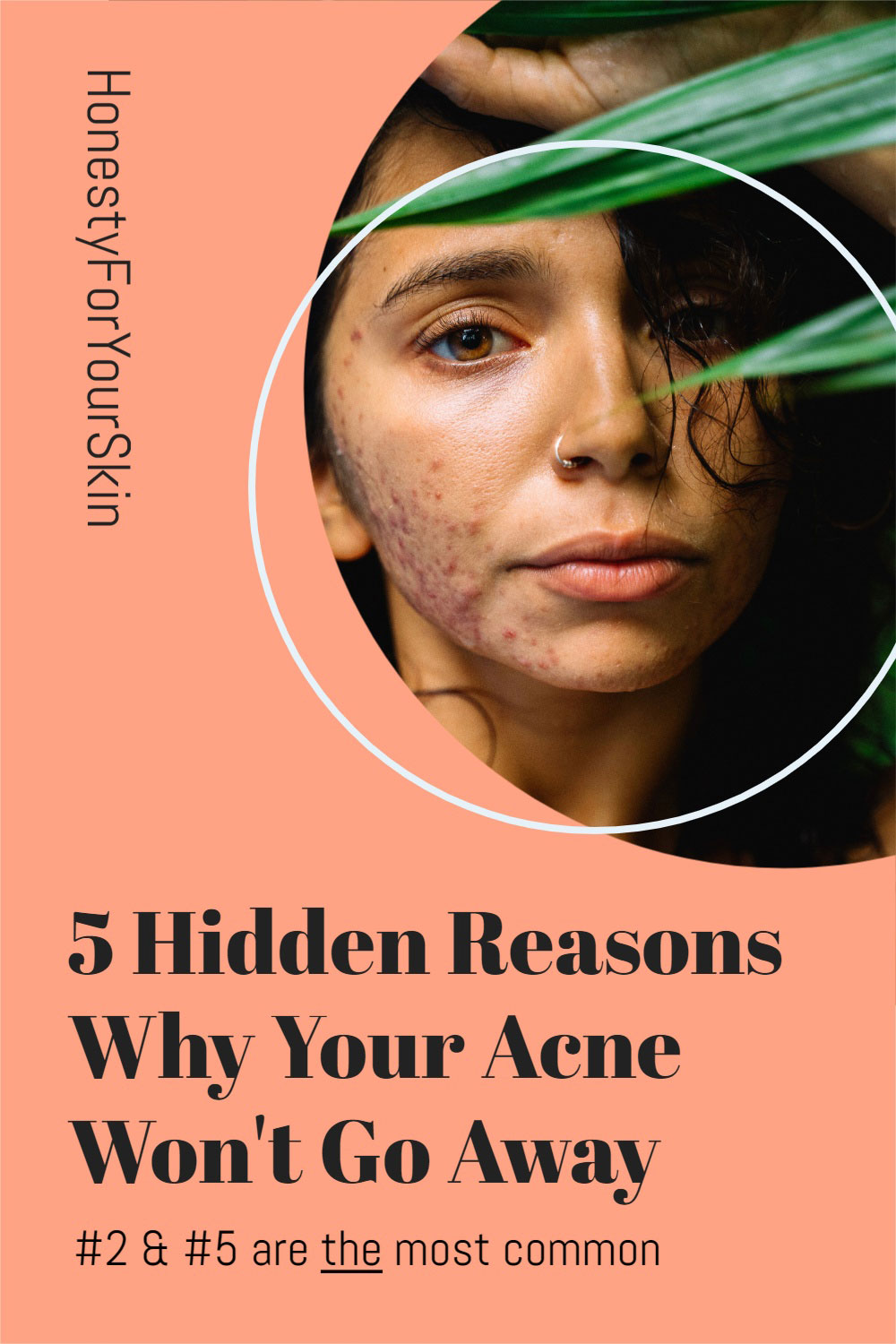 I get this first hand. How heart-wrenching it feels when acne won't go away. These are the 5 most common and science-supported reasons why.