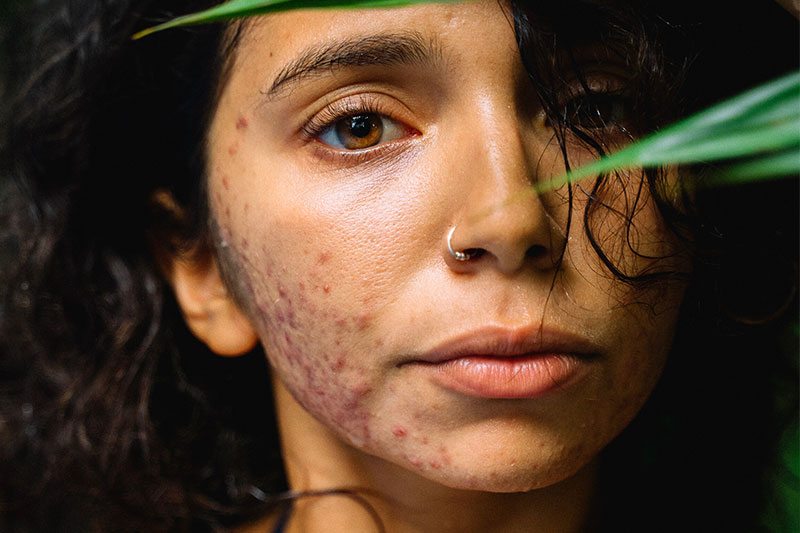 I get this first hand. How heart-wrenching it feels when acne won't go away. These are the 5 most common and science supported reasons why.