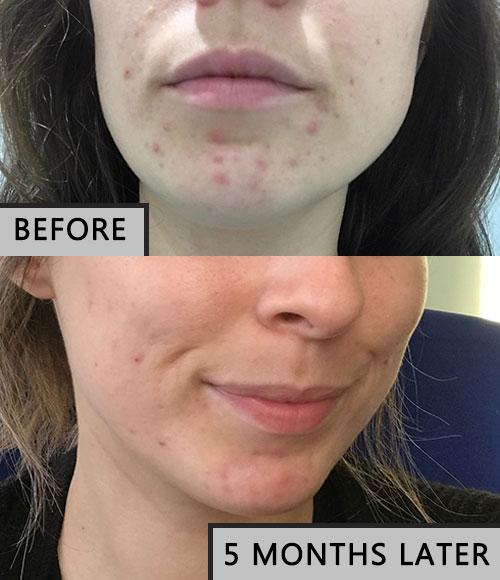 Acne clinic progress photos/review.