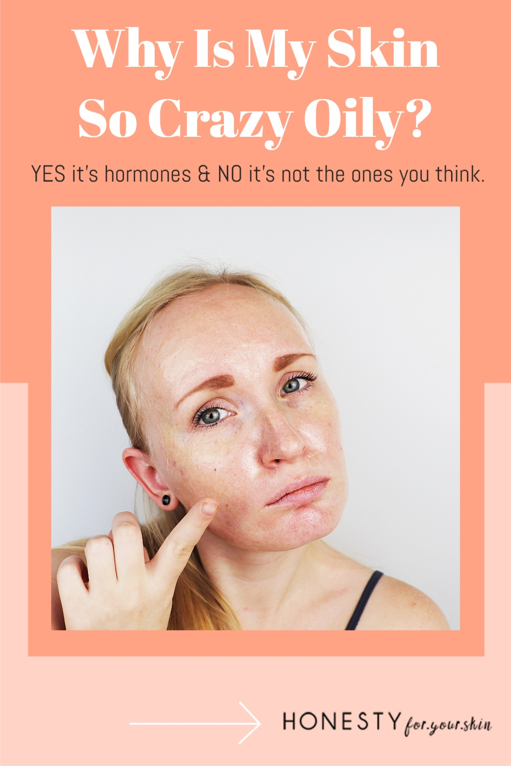 What causes an overproduction of sebum? What causes increased sebum production? Yes it's hormones but not the ones you think.