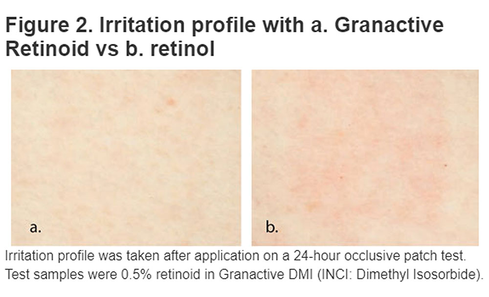 Does Granactive retinoid work as well as retinol? Which is better retinol or retinoid? This photos shows Granactive retinoid vs. retinol in a patch test. Can you see how skin is pink and irritated in photo B?