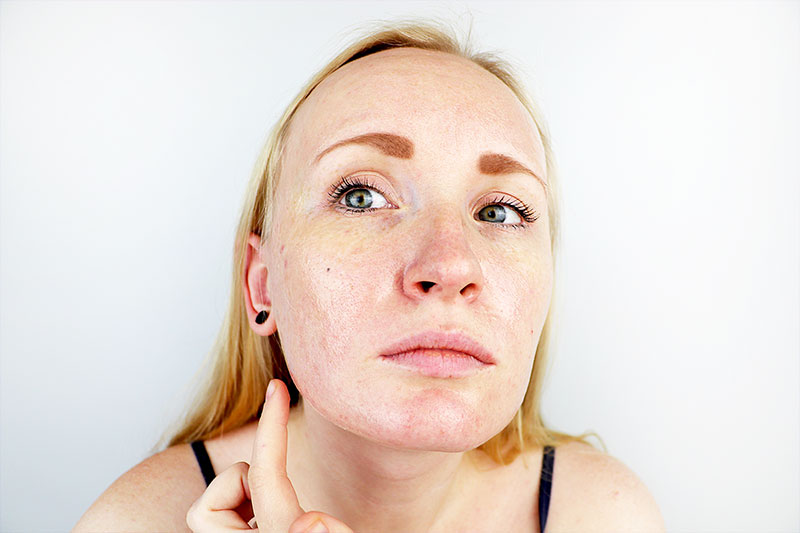 If you're asking/shouting – heck what are the causes of oily skin. Will someone just tell me how to get balanced skin that doesn't look greasy or oily anymore. You need to read this blog now.