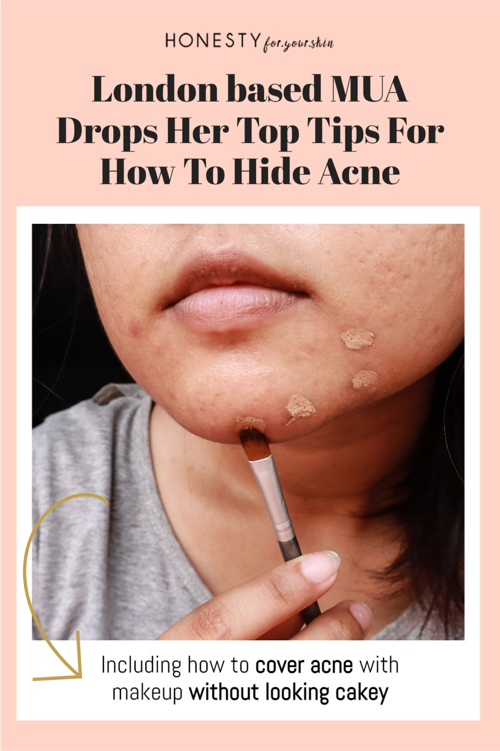 This is how to hide pimples and how to cover acne with makeup without looking cakey. An expert London based makeup artist is revealing all right here and right now.